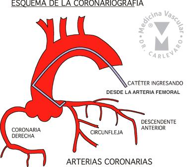 coronario