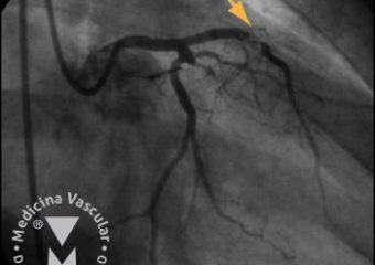 Angioplastia transluminal coronaria